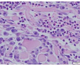 Šuns mastocitomoshistologinis vaizdas pro mikroskopą